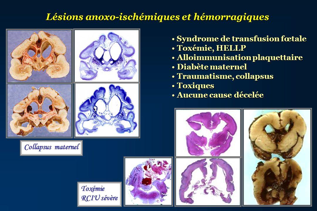 Lésions anoxo-ischémiques et hémorragiques Syndrome de transfusion fœtale Syndrome de transfusion fœtale Toxémie, HELLP Toxémie, HELLP Alloimmunisatio