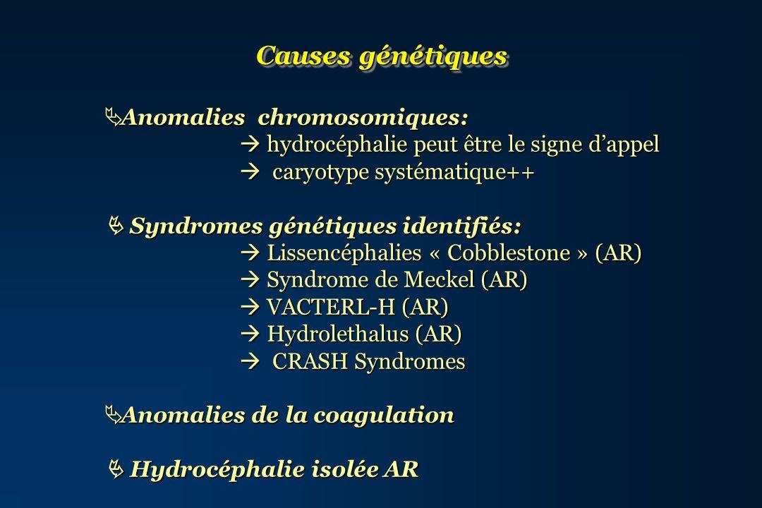 Causes génétiques Anomalies chromosomiques: Anomalies chromosomiques: hydrocéphalie peut être le signe dappel hydrocéphalie peut être le signe dappel