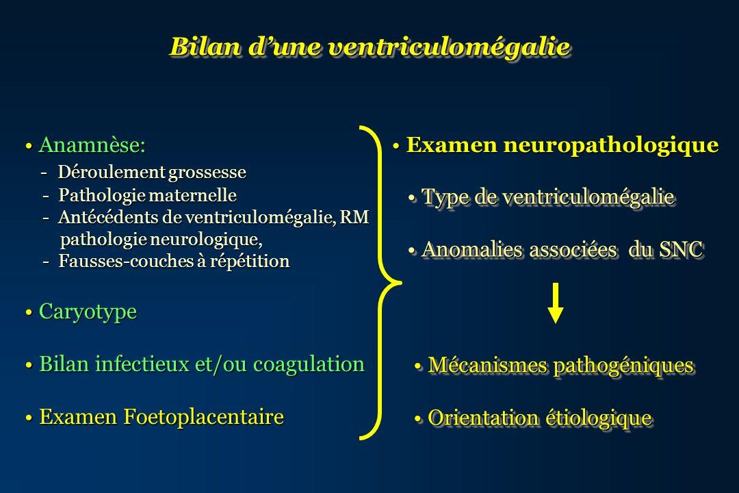 Syndrome de Meckel AR (17q21, 11q13) Gros rein Gros rein Encéphalocèle Encéphalocèle Polydactylie Polydactylie Malformation cérébrale complexe incluant hydrocéphalie sur atrésie de laqueduc sur atrésie de laqueduc Atrésie de laqueduc encéphalocèle