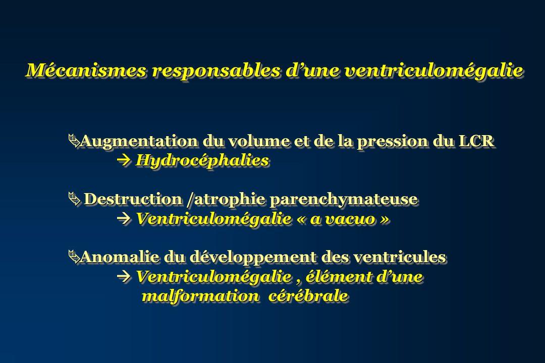 Mécanismes responsables dune ventriculomégalie Augmentation du volume et de la pression du LCR Augmentation du volume et de la pression du LCR Hydrocé