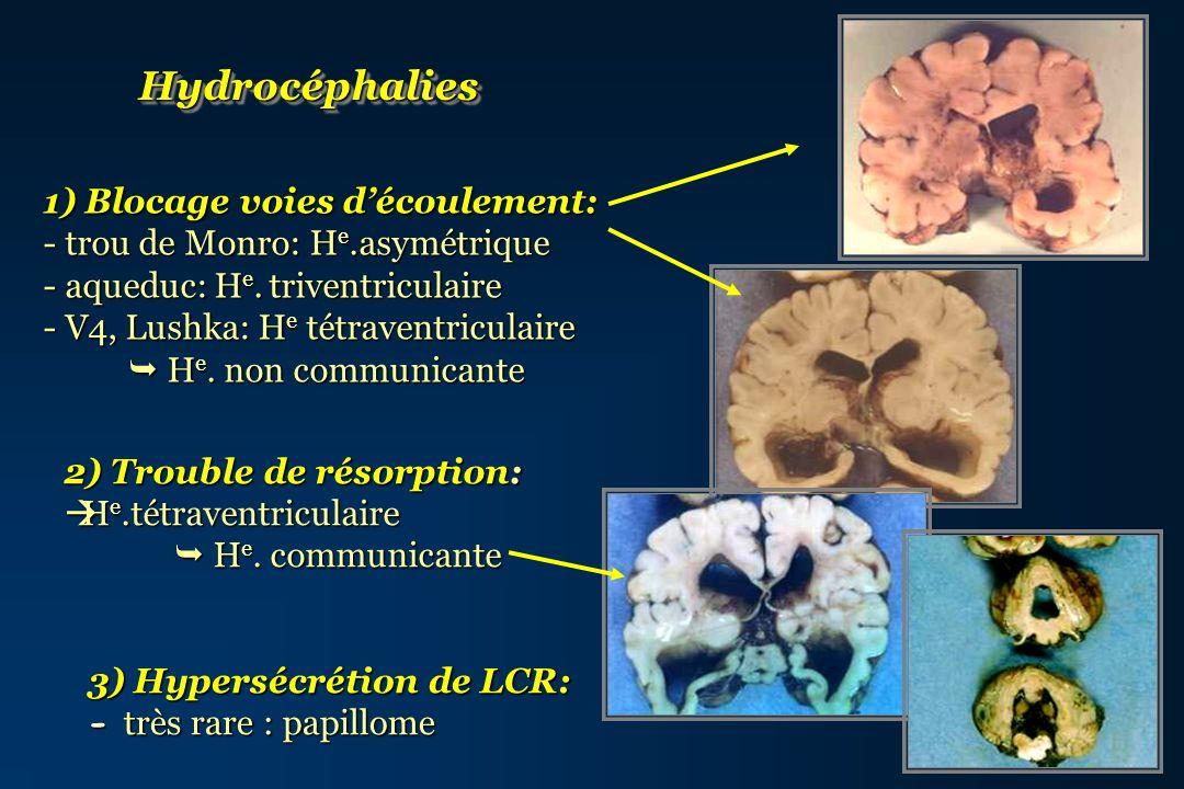 Malformations ou lésions cérébrales Responsables dun blocage de la circulation du LCR Malformations ou lésions cérébrales Responsables dun blocage de la circulation du LCR Anomalies de laqueduc de Sylvius isolées / associées à Anomalies de laqueduc de Sylvius isolées / associées à Anomalies/malformations de la fosse postérieure Anomalies/malformations de la fosse postérieure Lésions occupant de lespace (tumeurs, hamartomes, kystes…) Lésions occupant de lespace (tumeurs, hamartomes, kystes…)