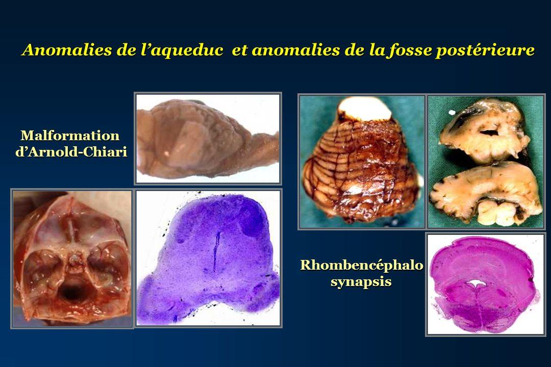 Anomalies de laqueduc et anomalies de la fosse postérieure MalformationdArnold-Chiari Rhombencéphalosynapsis