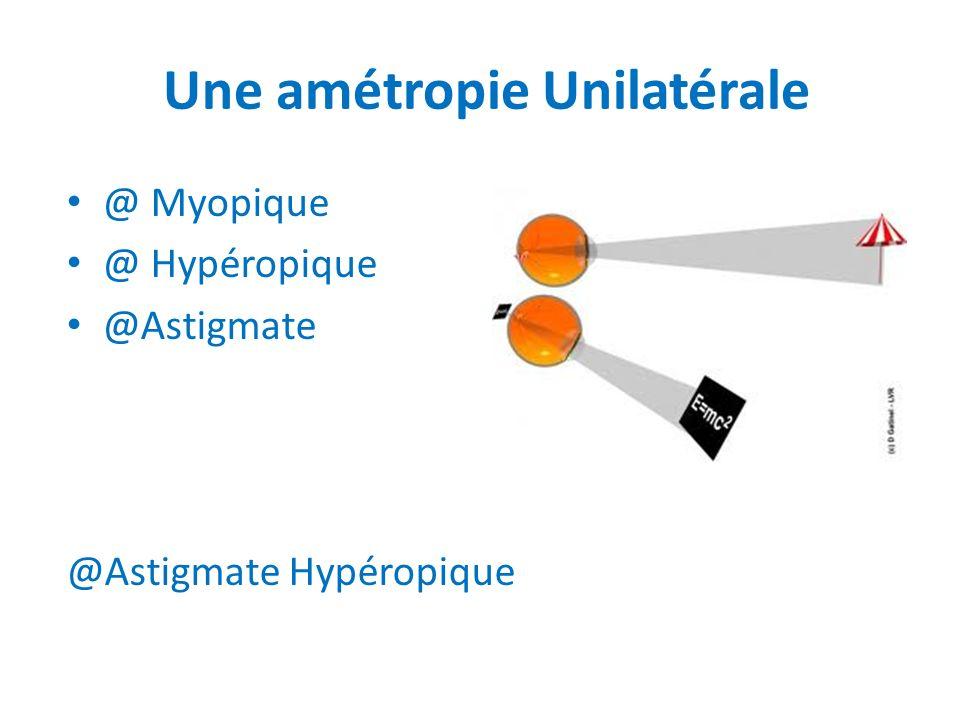 Une amétropie Unilatérale @ Myopique @ Hypéropique @Astigmate @Astigmate Hypéropique