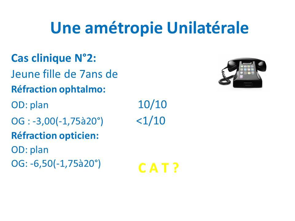 Une amétropie Unilatérale Cas clinique N°2: Jeune fille de 7ans de Réfraction ophtalmo: OD: plan 10/10 OG : -3,00(-1,75à20°) <1/10 Réfraction opticien: OD: plan OG: -6,50(-1,75à20°) C A T ?
