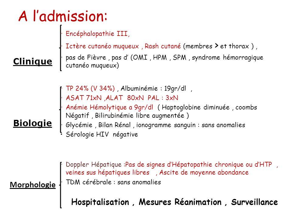 A ladmission: Clinique Encéphalopathie III, Ictère cutanéo muqueux, Rash cutané (membres > et thorax ), pas de Fièvre, pas d (OMI, HPM, SPM, syndrome