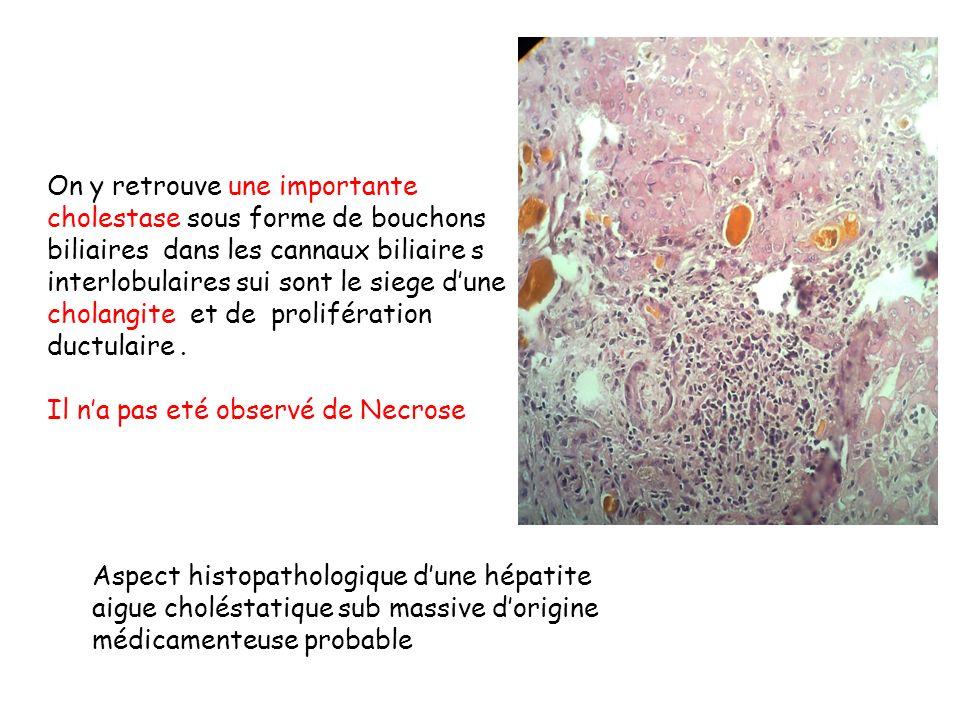 On y retrouve une importante cholestase sous forme de bouchons biliaires dans les cannaux biliaire s interlobulaires sui sont le siege dune cholangite