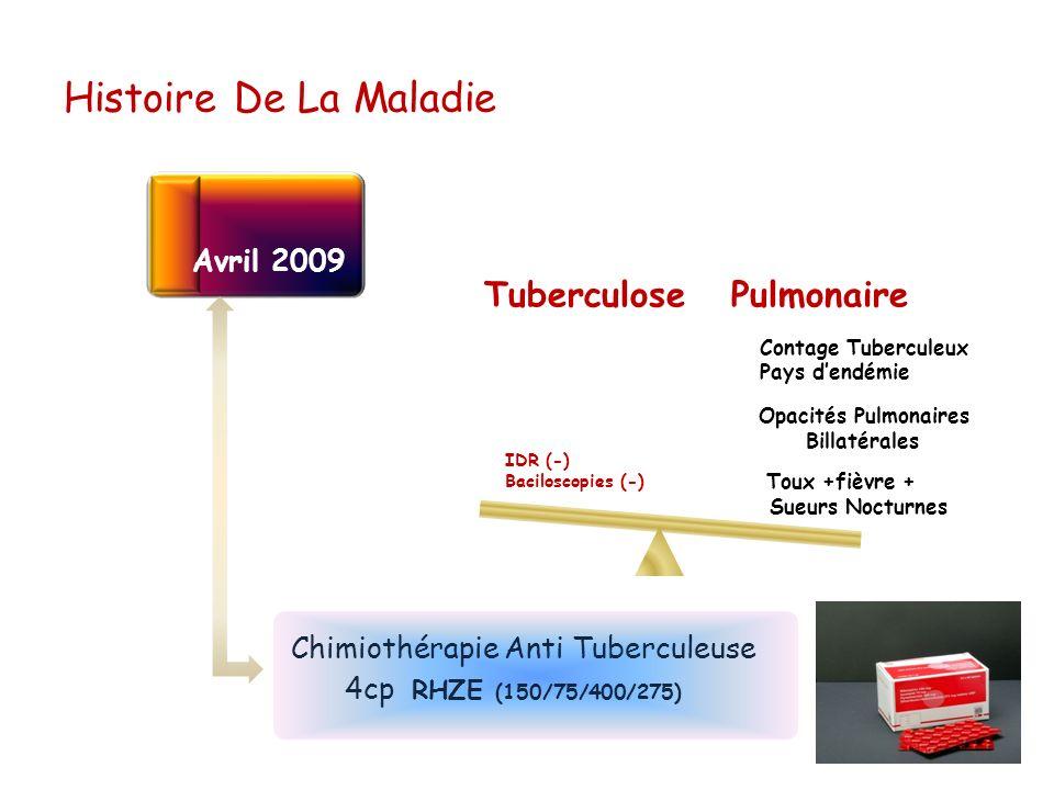 Histoire De La Maladie Avril 2009 Tuberculose Pulmonaire Toux +fièvre + Sueurs Nocturnes Opacités Pulmonaires Billatérales Contage Tuberculeux Pays de