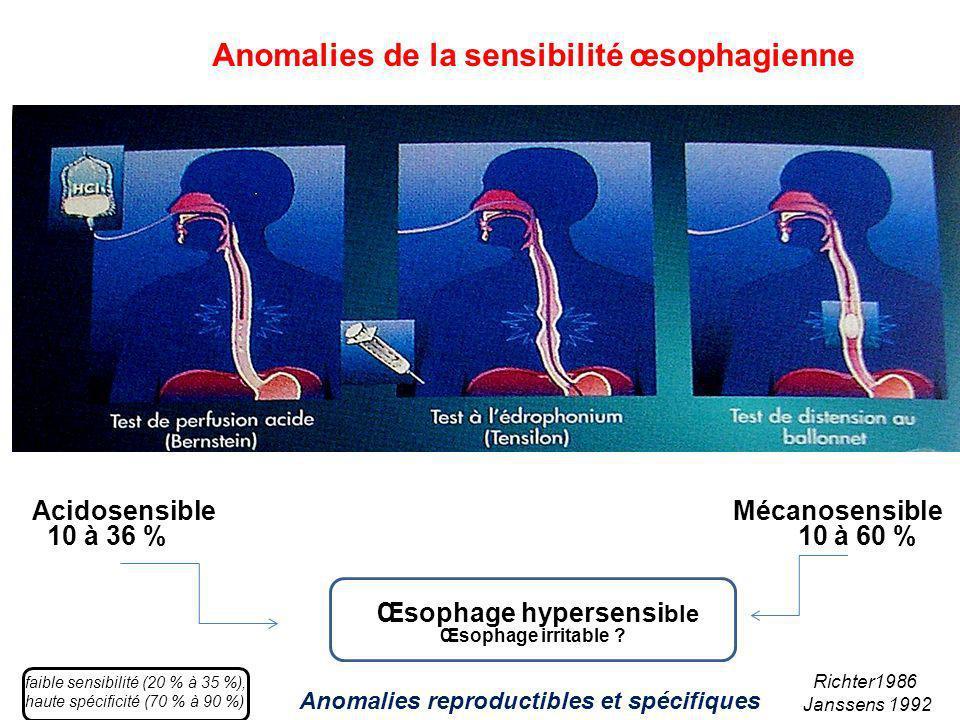 Acidosensible Mécanosensible 10 à 36 % 10 à 60 % Œsophage hypersensi ble Œsophage irritable ? Anomalies de la sensibilité œsophagienne Richter1986 Jan