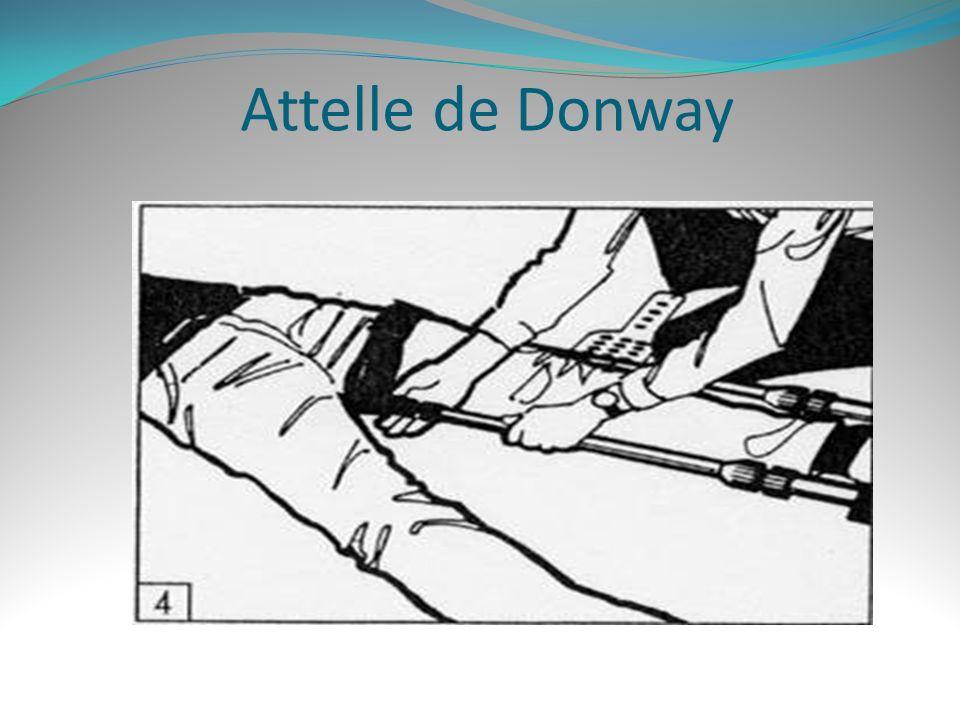 Attelle de Donway