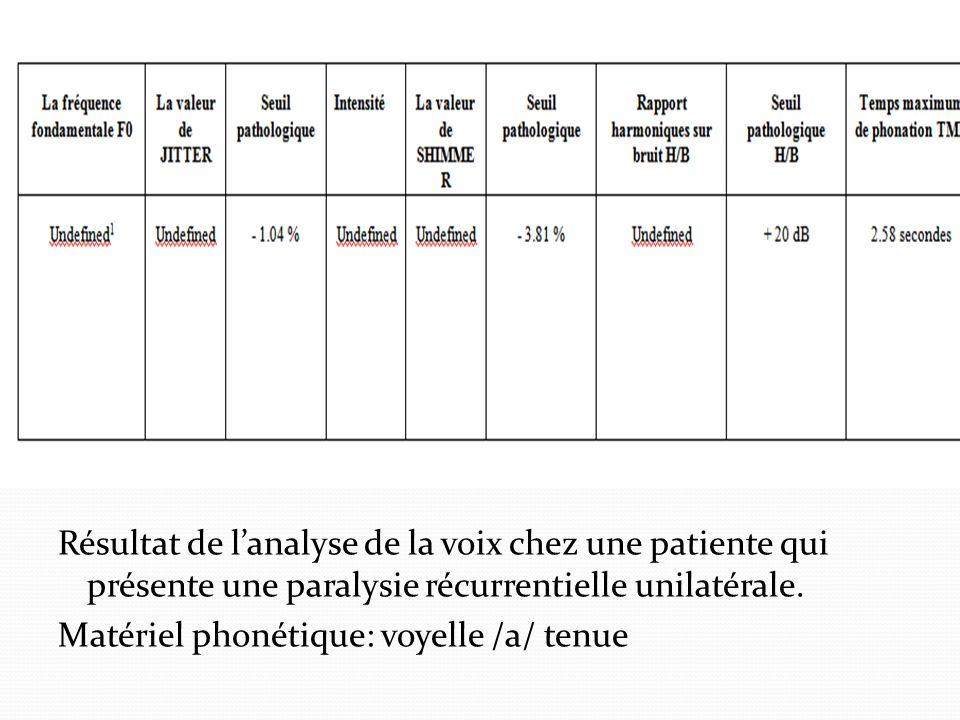 Résultat de lanalyse de la voix chez une patiente qui présente une paralysie récurrentielle unilatérale. Matériel phonétique: voyelle /a/ tenue