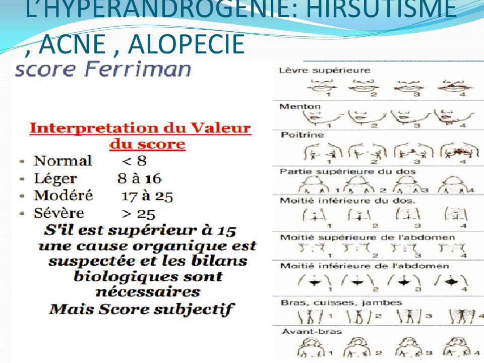LHYPERANDROGENIE: HIRSUTISME, ACNE, ALOPECIE