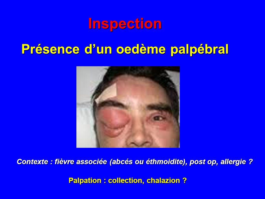 Inspection Présence dun oedème palpébral Contexte : fièvre associée (abcés ou éthmoidite), post op, allergie ? Palpation : collection, chalazion ?