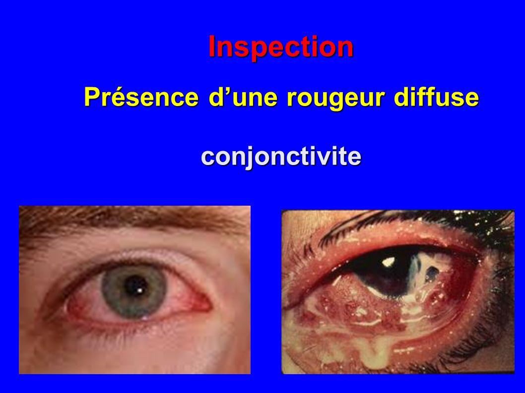 Inspection Présence dune rougeur diffuse conjonctivite