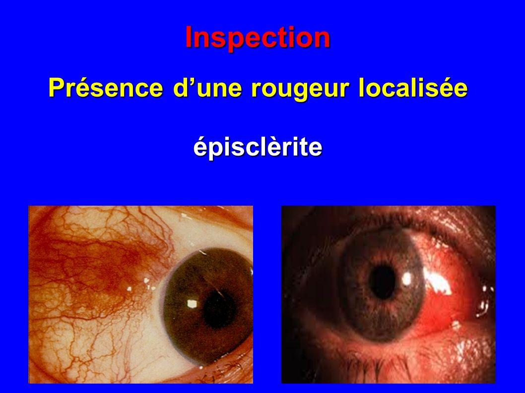 Inspection Sclèrite nodulaire (PR ?)