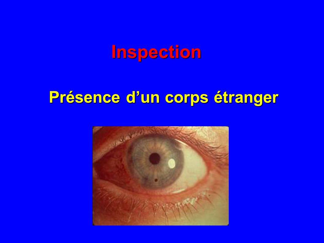 Inspection Présence dune ulcération cornéenne test à la fluorésceine