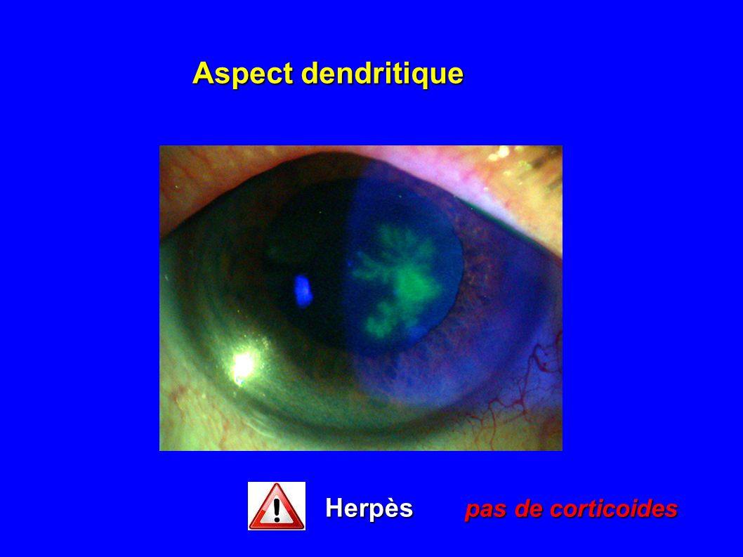 Aspect dendritique Herpès pas de corticoides
