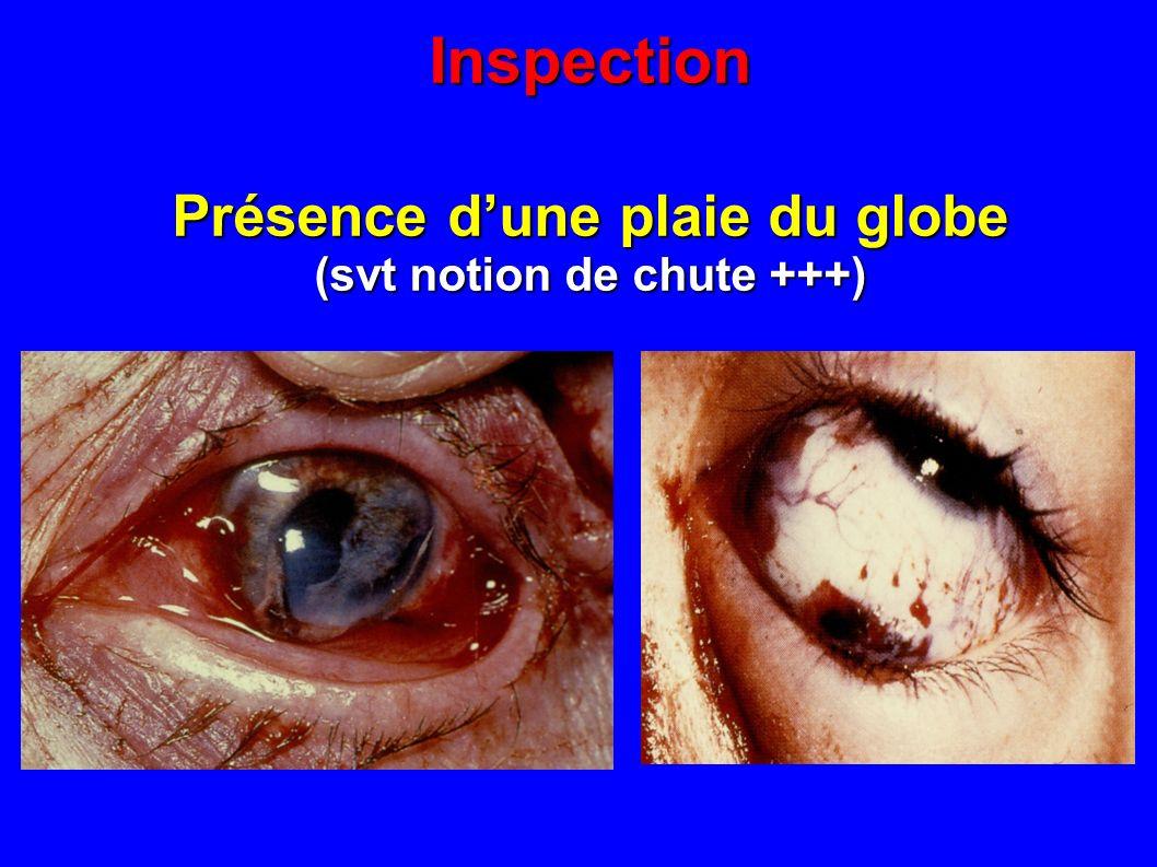 Inspection Présence dune plaie du globe (svt notion de chute +++)