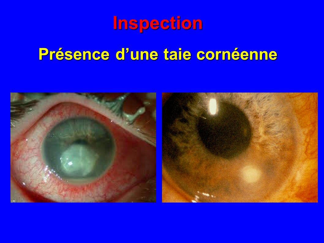 Inspection Présence dun oedème cornéen