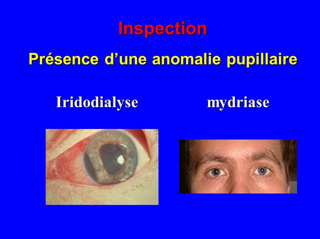 Inspection Présence dun hyphéma Contexte : diabète, trauma, OVCR ?