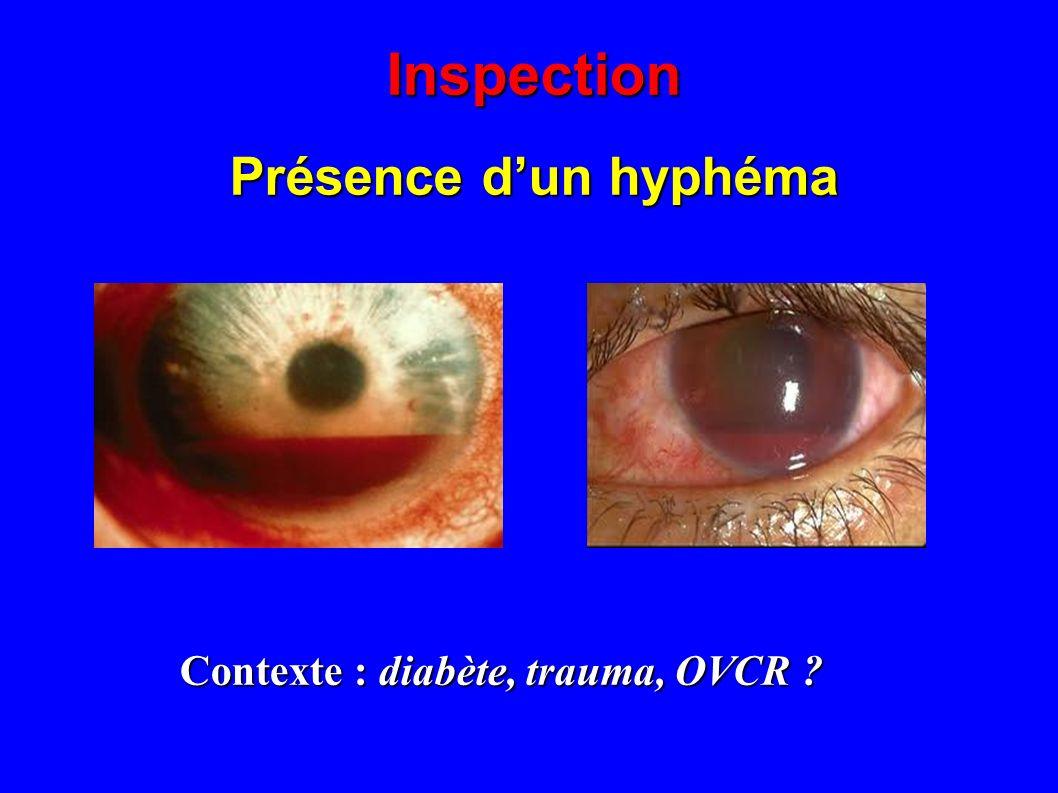 Inspection Présence dun hypopion Contexte : abcès, post op, atcd duveite ?
