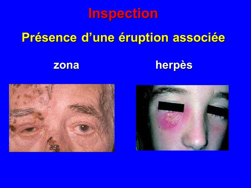 Inspection Présence dune éruption associée zona herpès