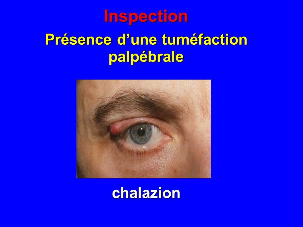 Inspection Présence dune tuméfaction du canthus interne dacryocystite