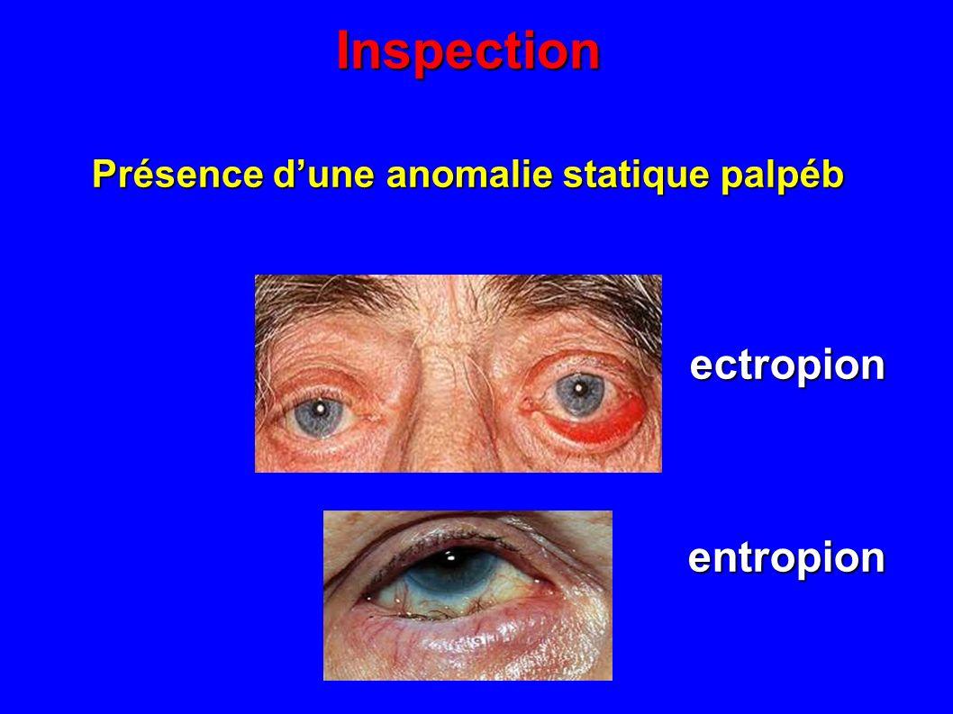 Inspection Présence dune anomalie statique palpéb ectropion ectropion entropion entropion