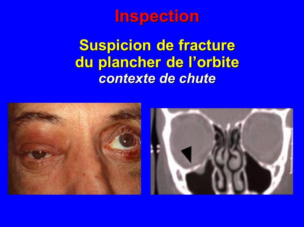 Inspection Suspicion de fracture du plancher de lorbite contexte de chute
