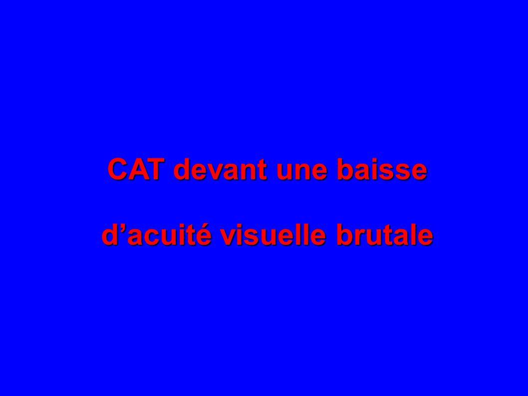 CAT devant une baisse dacuité visuelle brutale
