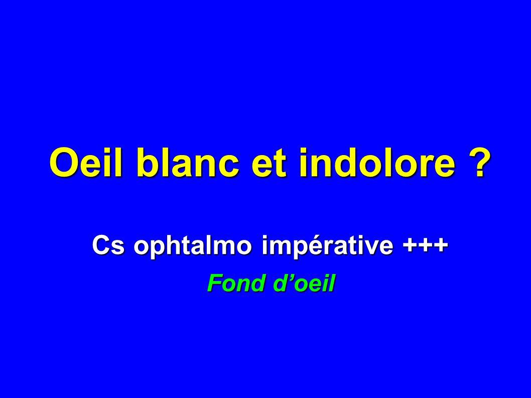 Oeil blanc et indolore ? Cs ophtalmo impérative +++ Fond doeil
