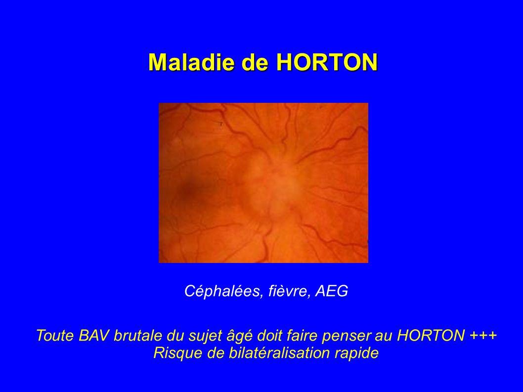 Maladie de HORTON Céphalées, fièvre, AEG Toute BAV brutale du sujet âgé doit faire penser au HORTON +++ Risque de bilatéralisation rapide