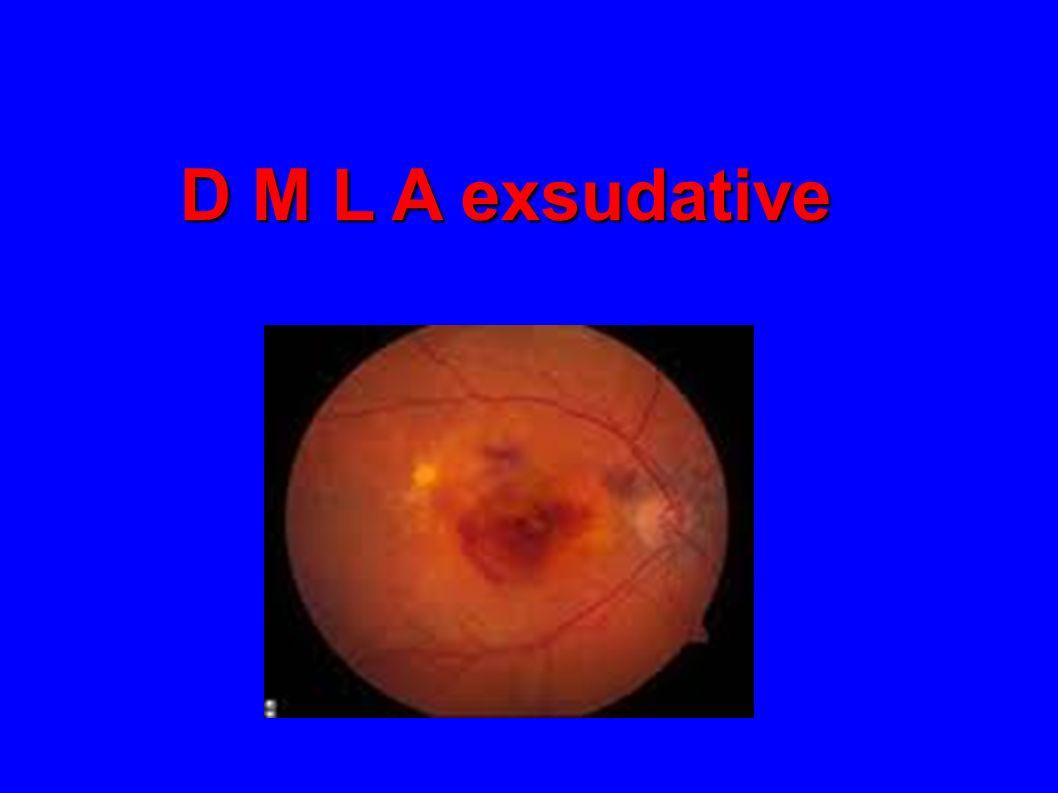 BAV brutale avec oeil blanc et indolore Cs ophtalmo urgente