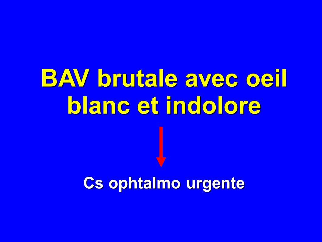 Cécité bilatérale brutale Cécité bilatérale brutale du sujet âgé - cécité corticale - cécité corticale - NORB bilatérale (bas débit) - NORB bilatérale (bas débit)