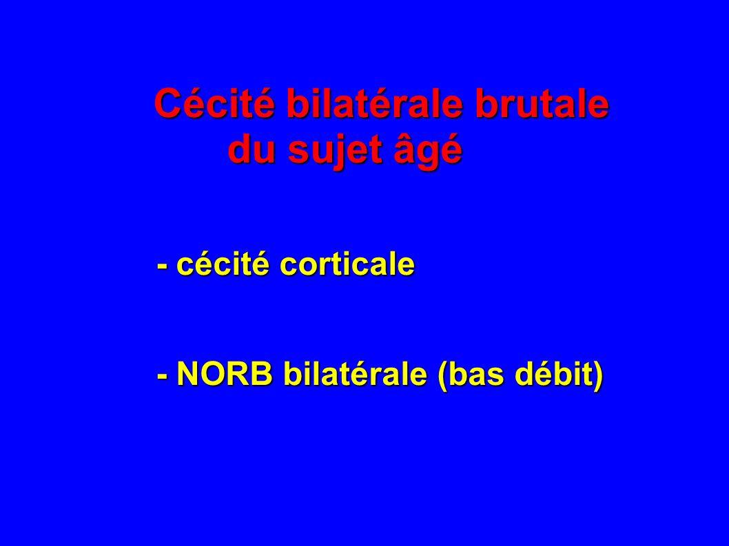 Cécité monoculaire transitoire du sujet âgé - si douleurs : sténose carotide interne ou HORTON - si douleurs : sténose carotide interne ou HORTON - le + svt : plaque carotidienne (EDV +++) - le + svt : plaque carotidienne (EDV +++) - si bilatérale : éclipses visuelles (HTIC) - si bilatérale : éclipses visuelles (HTIC)
