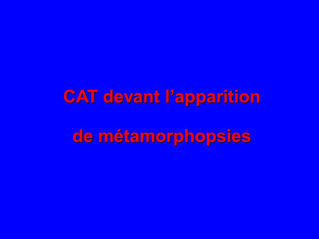 CAT devant lapparition de métamorphopsies