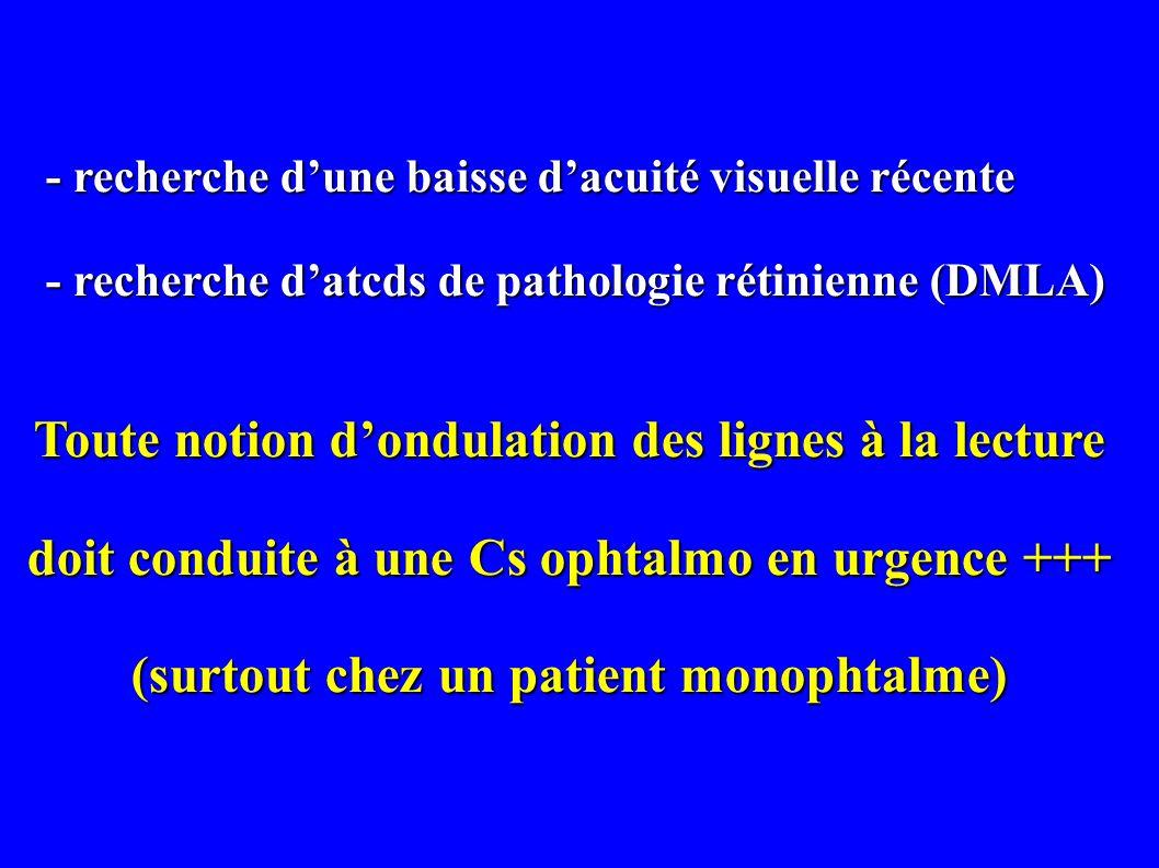 - recherche dune baisse dacuité visuelle récente - recherche dune baisse dacuité visuelle récente - recherche datcds de pathologie rétinienne (DMLA) -