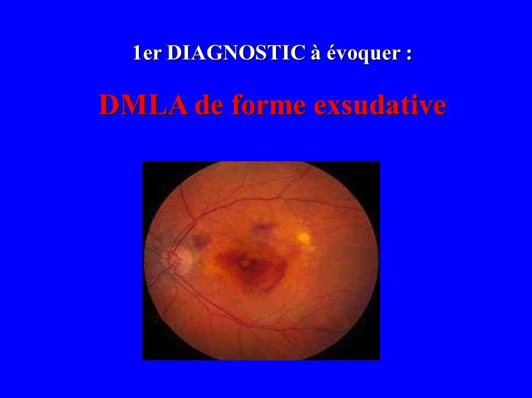 1er DIAGNOSTIC à évoquer : DMLA de forme exsudative