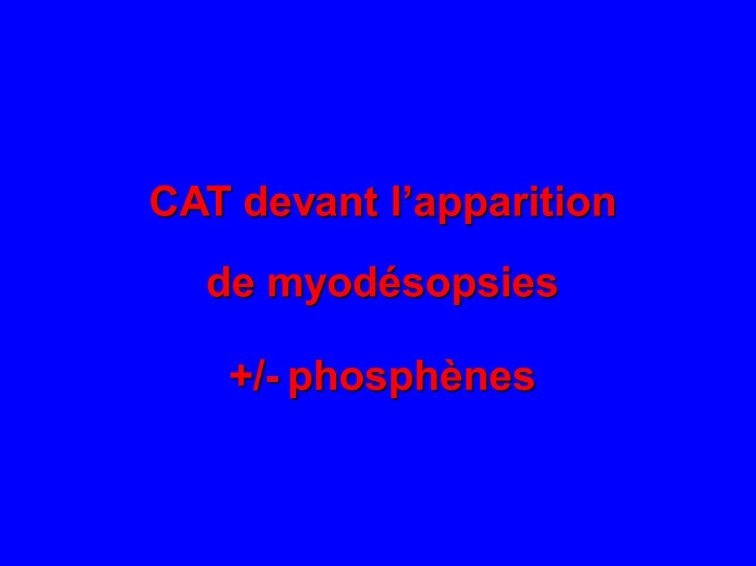 CAT devant lapparition de myodésopsies +/- phosphènes