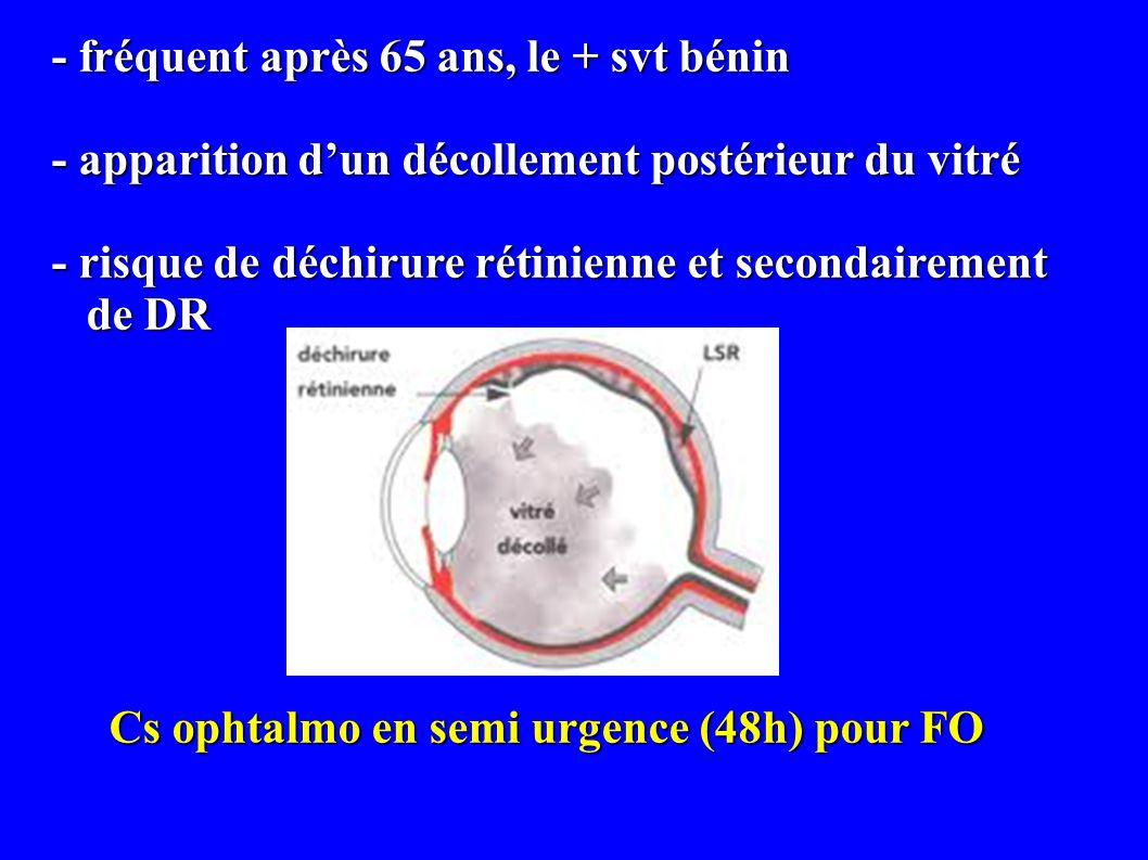 - fréquent après 65 ans, le + svt bénin - apparition dun décollement postérieur du vitré - risque de déchirure rétinienne et secondairement de DR de D