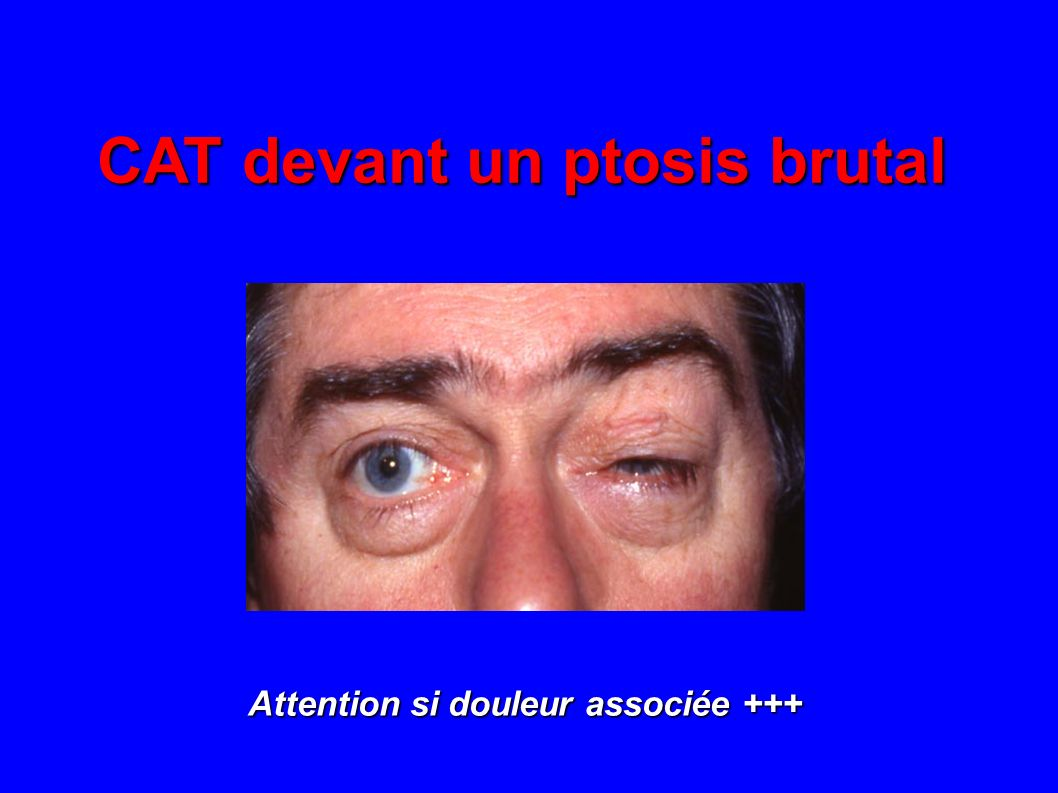 CAT devant un ptosis brutal Attention si douleur associée +++