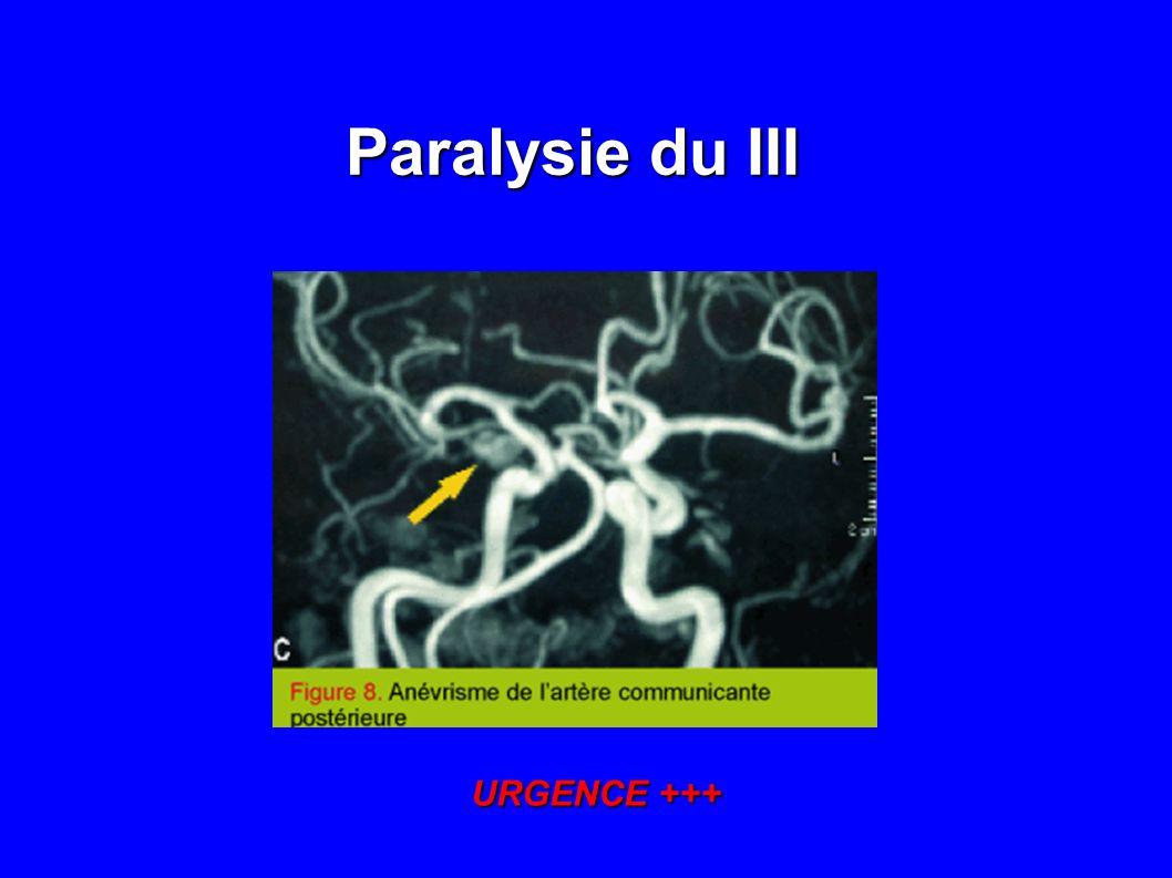 Ptosis douloureux sans paralysie du III Ptosis douloureux sans paralysie du III VS en URGENCE +++ et BAT HORTON