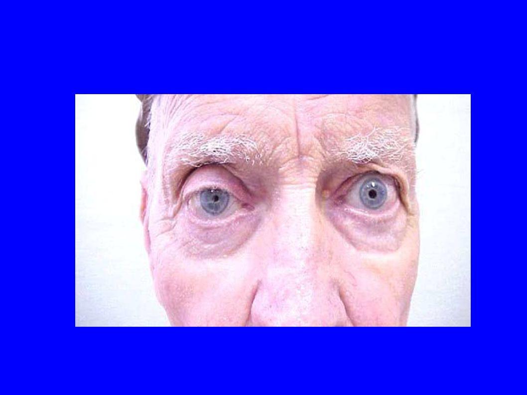 Penser au Claude Bernard Horner ! Si douleur associée : dissection carotidienne +++