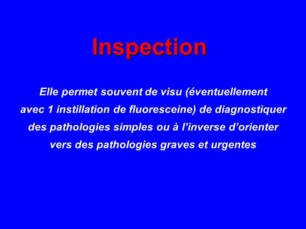 Inspection Inspection Elle permet souvent de visu (éventuellement avec 1 instillation de fluoresceine) de diagnostiquer des pathologies simples ou à l