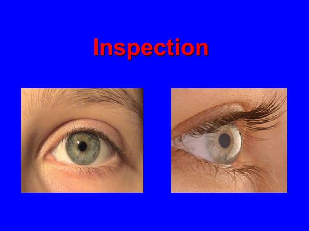 Inspection Présence dun oedème palpébral Contexte : fièvre associée (abcés ou éthmoidite), post op, allergie .