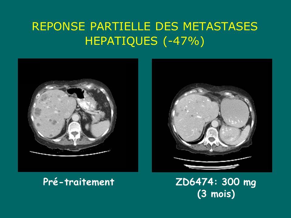 Pré-traitementZD6474: 300 mg (3 mois) REPONSE PARTIELLE DES METASTASES HEPATIQUES (-47%)