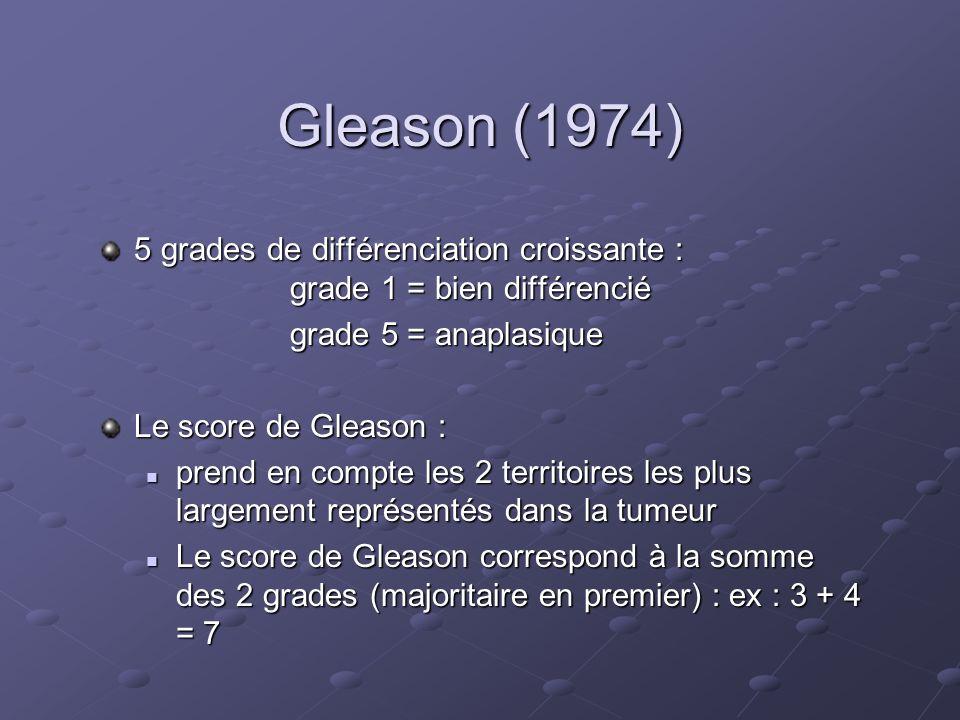 Gleason (1974) 5 grades de différenciation croissante : grade 1 = bien différencié grade 5 = anaplasique grade 5 = anaplasique Le score de Gleason : p