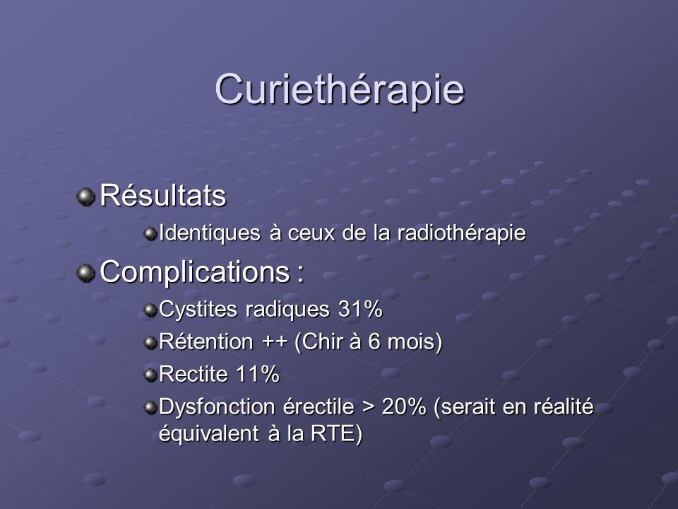 Curiethérapie Résultats Identiques à ceux de la radiothérapie Complications : Cystites radiques 31% Rétention ++ (Chir à 6 mois) Rectite 11% Dysfoncti