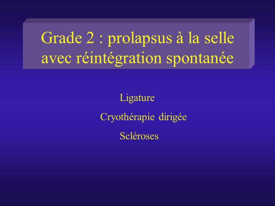 Grade 2 : prolapsus à la selle avec réintégration spontanée Ligature Cryothérapie dirigée Scléroses