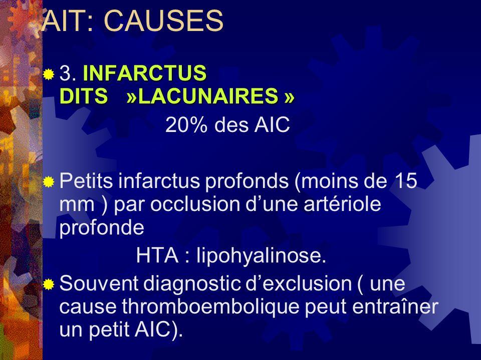 AIT: CAUSES INFARCTUS DITS »LACUNAIRES » 3. INFARCTUS DITS »LACUNAIRES » 20% des AIC Petits infarctus profonds (moins de 15 mm ) par occlusion dune ar