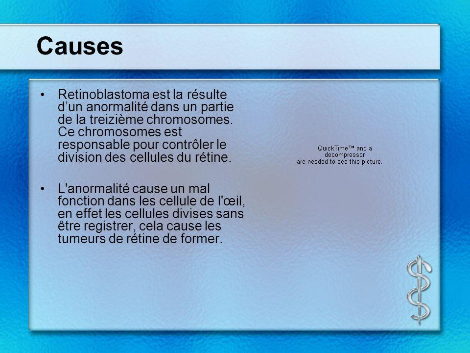 Causes Retinoblastoma est la résulte dun anormalité dans un partie de la treizième chromosomes.
